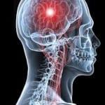 Άσκηση μετά το εγκεφαλικό;